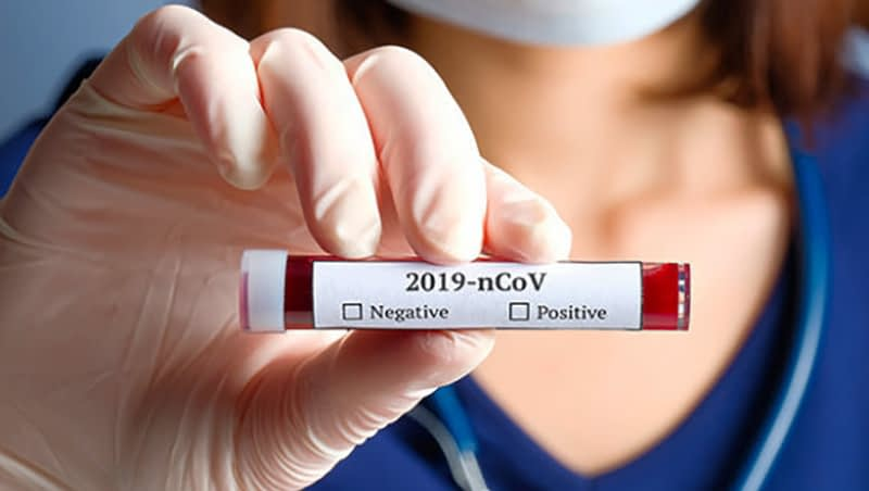 charme_stad_com_coronarovirus_test